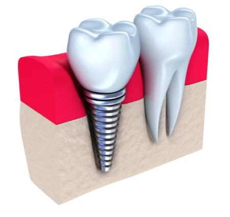 implantes-azcona